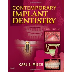 Contemporary Implant Dentistry 3rd Edition